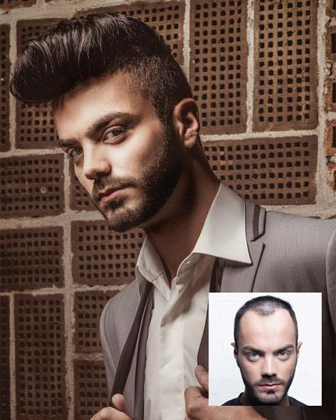 Photo Institut Hairfax Marseille
